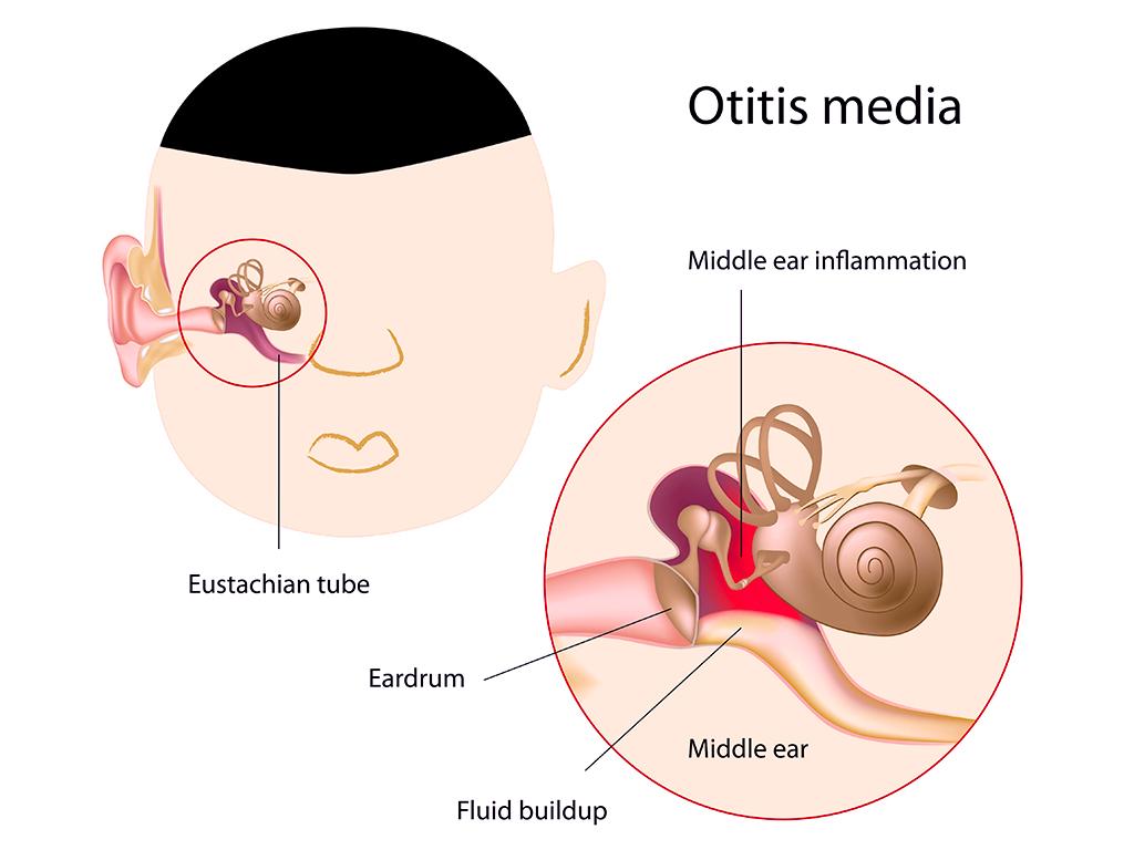 Definisi Gangguan Pendengaran pada Anak